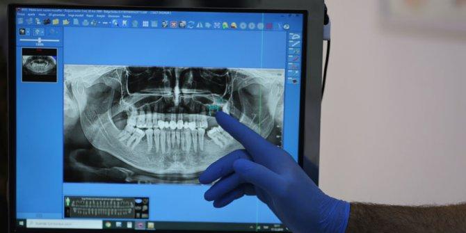 Eksik Dişlerinizi Tamamlamak için Süreniz Sınırlı