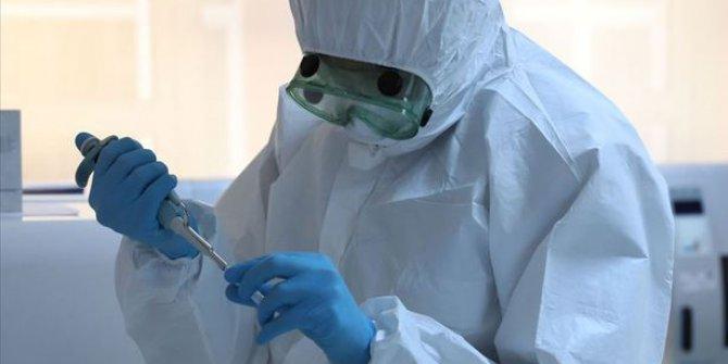 Türkiye'de koronavirüs nedeniyle hayatını kaybeden sayısı 425'e yükseldi