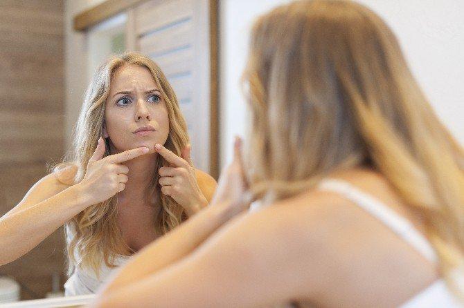 Sivilcelerin İyileşmesi Psikolojinize Bağlı