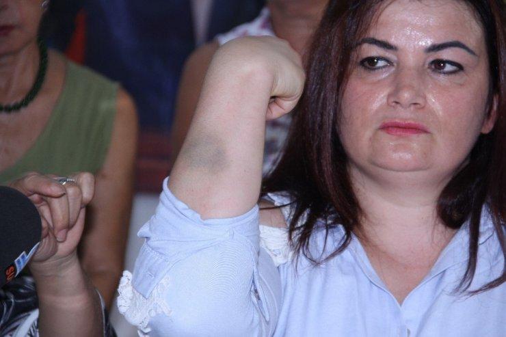 Mersin'de kadın belediye personeline darp iddiası